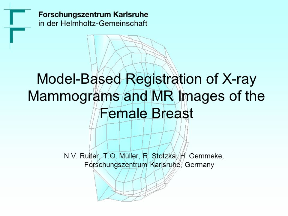 Model-Based Registration of X-ray Mammograms and MR Images of the Female Breast N.V.