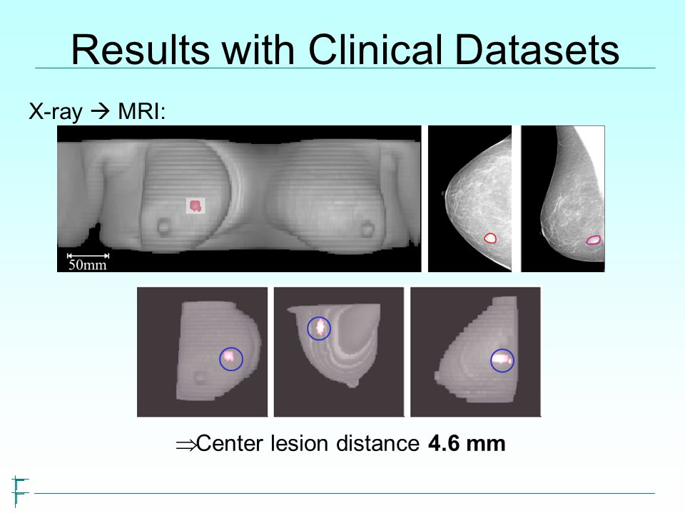 Results with Clinical Datasets X-ray MRI: Center lesion distance 4.6 mm