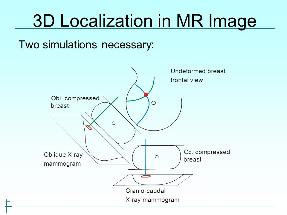 3D Localization in MR Image Two simulations necessary: Obl. compressed breast Cc. compressed breast Oblique X-ray mammogram Cranio-caudal X-ray mammog