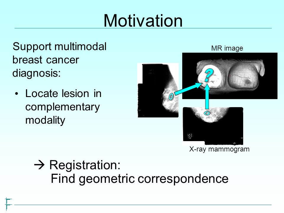 Motivation Locate lesion in complementary modality MR image X-ray mammogram Registration: Find geometric correspondence Support multimodal breast canc