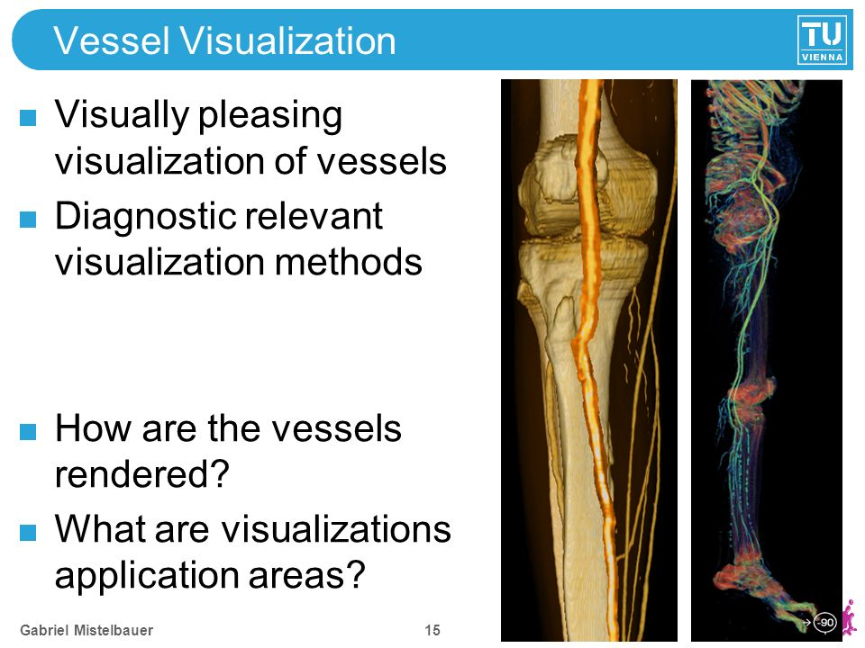 Vessel Visualization Visually pleasing visualization of vessels Diagnostic relevant visualization methods How are the vessels rendered.