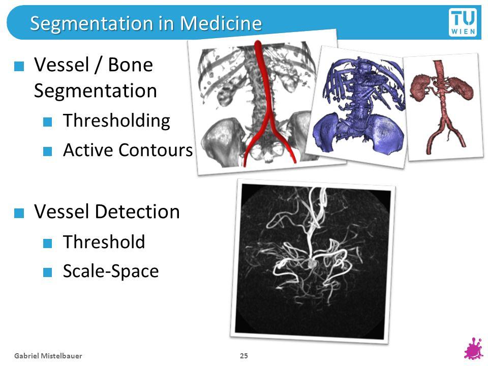 Segmentation in Medicine Vessel / Bone Segmentation Thresholding Active Contours Vessel Detection Threshold Scale-Space Gabriel Mistelbauer 25