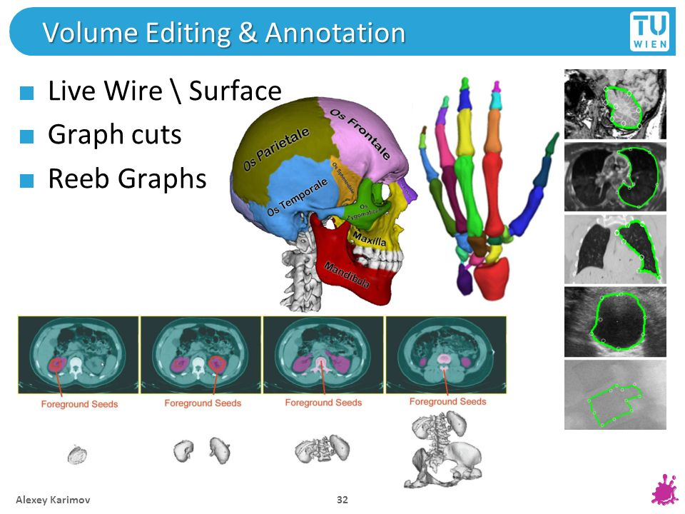 Volume Editing & Annotation Live Wire \ Surface Graph cuts Reeb Graphs Alexey Karimov 32