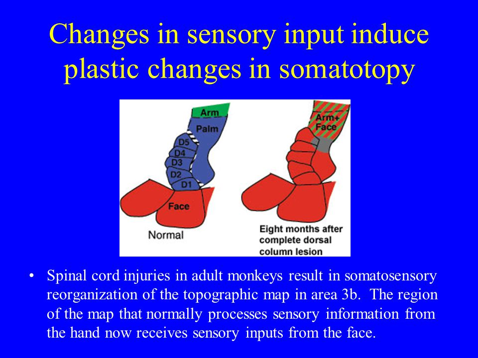 Changes in sensory input induce plastic changes in somatotopy Spinal cord injuries in adult monkeys result in somatosensory reorganization of the topographic map in area 3b.