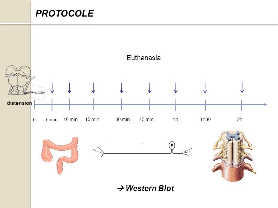 distension Euthanasia 1h302h 0 45 min30 min15 min10 min 5 min 1h PROTOCOLE Western Blot