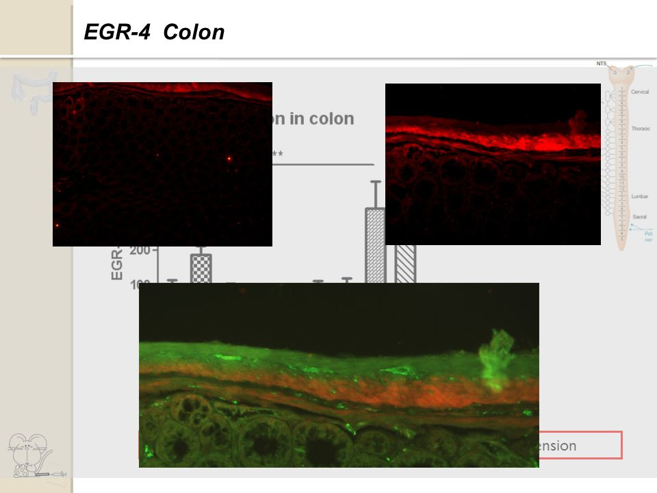 Increase of total form of EGR-4 45 minutes after distension Expression of EGR-4 EGR-4 Colon