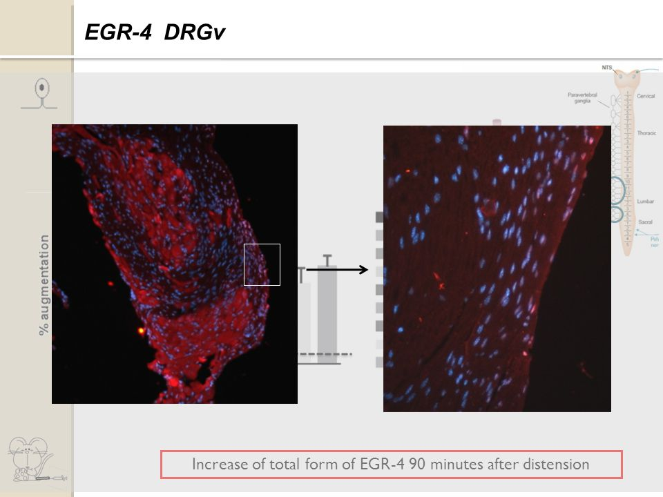 Increase of total form of EGR-4 90 minutes after distension Expression of EGR-4 EGR-4 DRGv