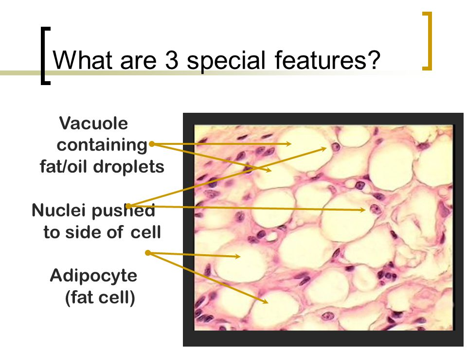 What are 3 special features? Vacuole containing fat/oil droplets Nuclei pushed to side of cell Adipocyte (fat cell)