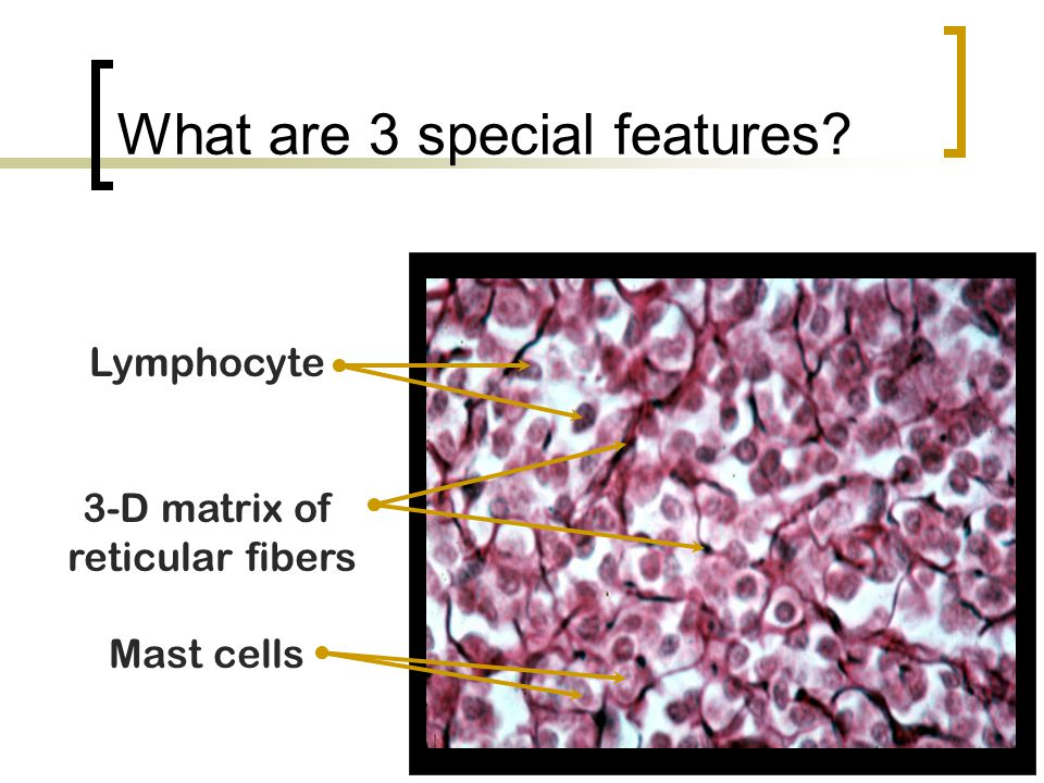 What are 3 special features? Lymphocyte 3-D matrix of reticular fibers Mast cells