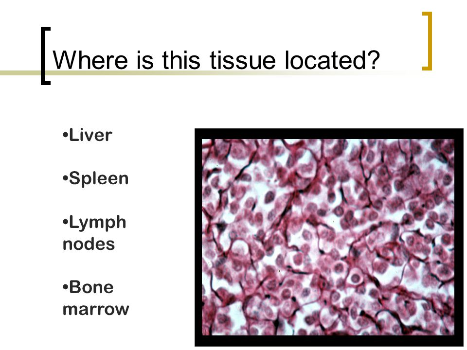 Where is this tissue located? Liver Spleen Lymph nodes Bone marrow