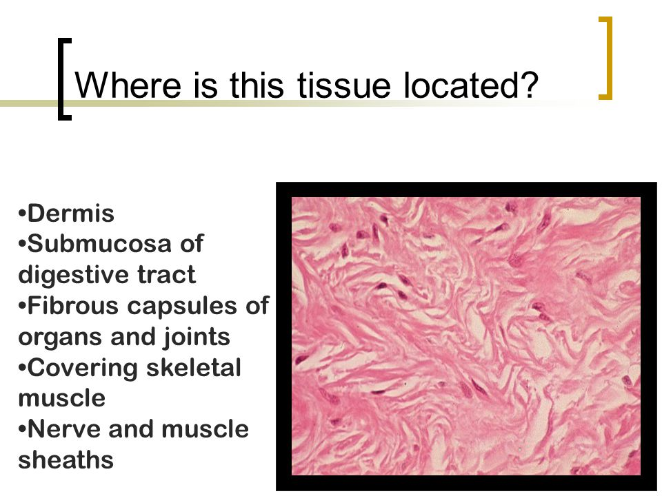 Where is this tissue located? Dermis Submucosa of digestive tract Fibrous capsules of organs and joints Covering skeletal muscle Nerve and muscle shea