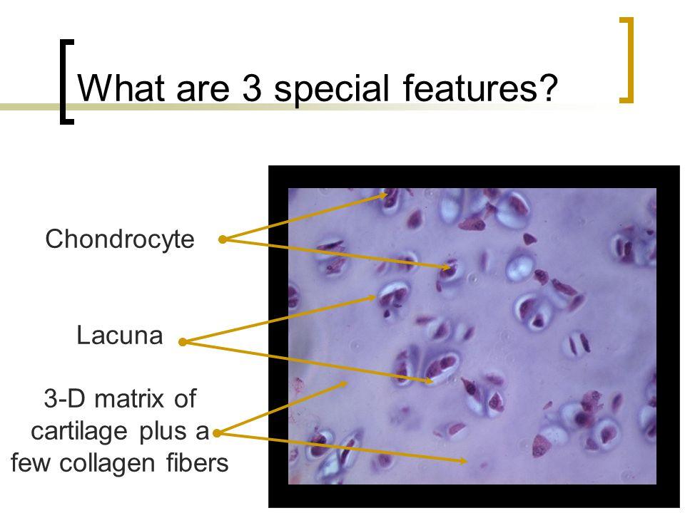 What are 3 special features? Chondrocyte Lacuna 3-D matrix of cartilage plus a few collagen fibers