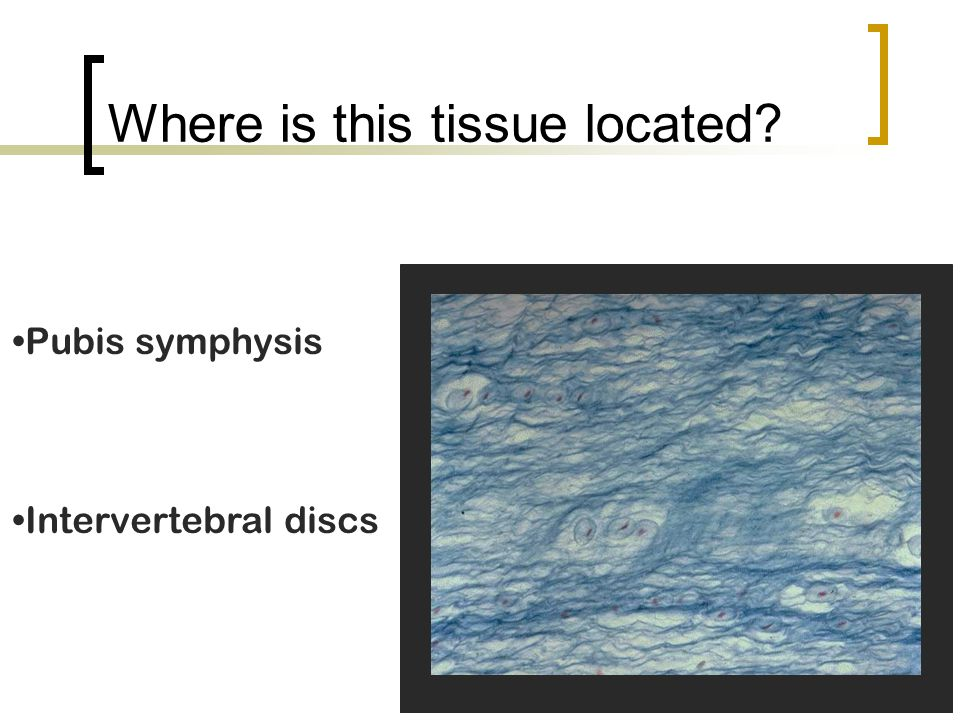 Where is this tissue located? Pubis symphysis Intervertebral discs