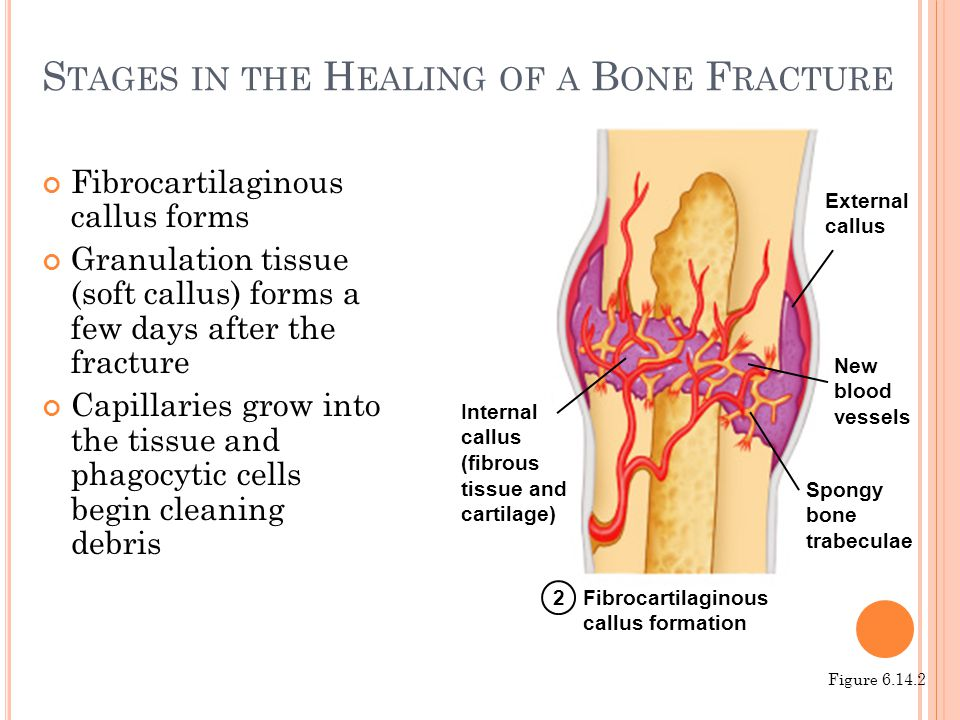 S TAGES IN THE H EALING OF A B ONE F RACTURE Fibrocartilaginous callus forms Granulation tissue (soft callus) forms a few days after the fracture Capi