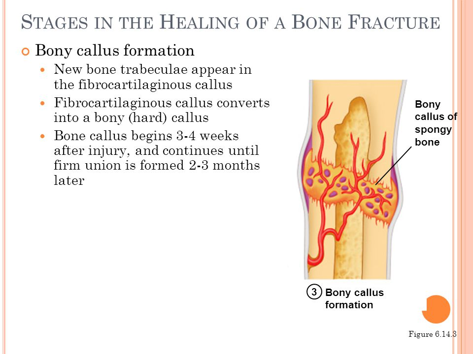 S TAGES IN THE H EALING OF A B ONE F RACTURE Bony callus formation New bone trabeculae appear in the fibrocartilaginous callus Fibrocartilaginous call