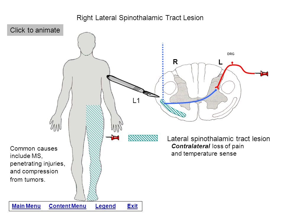 Click for answer Damage to the right lateral spinothalamic tract at L1 causes the absence of pain and temperature sensation in the left leg.