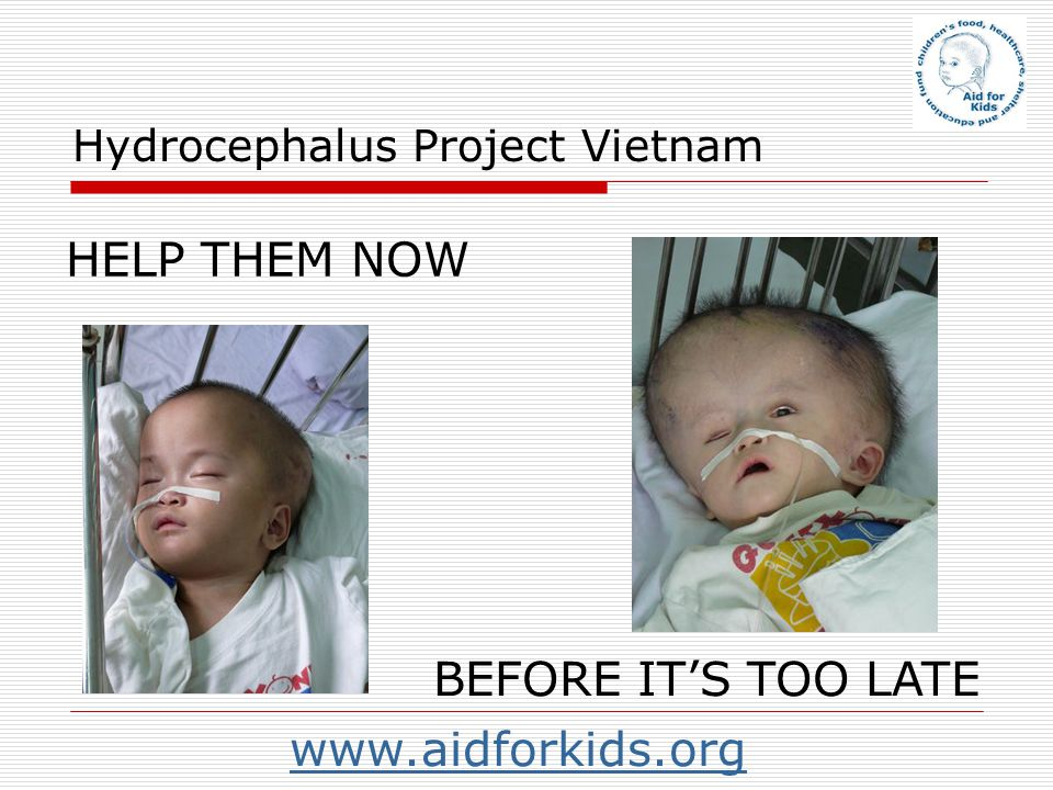 Hydrocephalus Project Vietnam HELP THEM NOW BEFORE ITS TOO LATE www.aidforkids.org