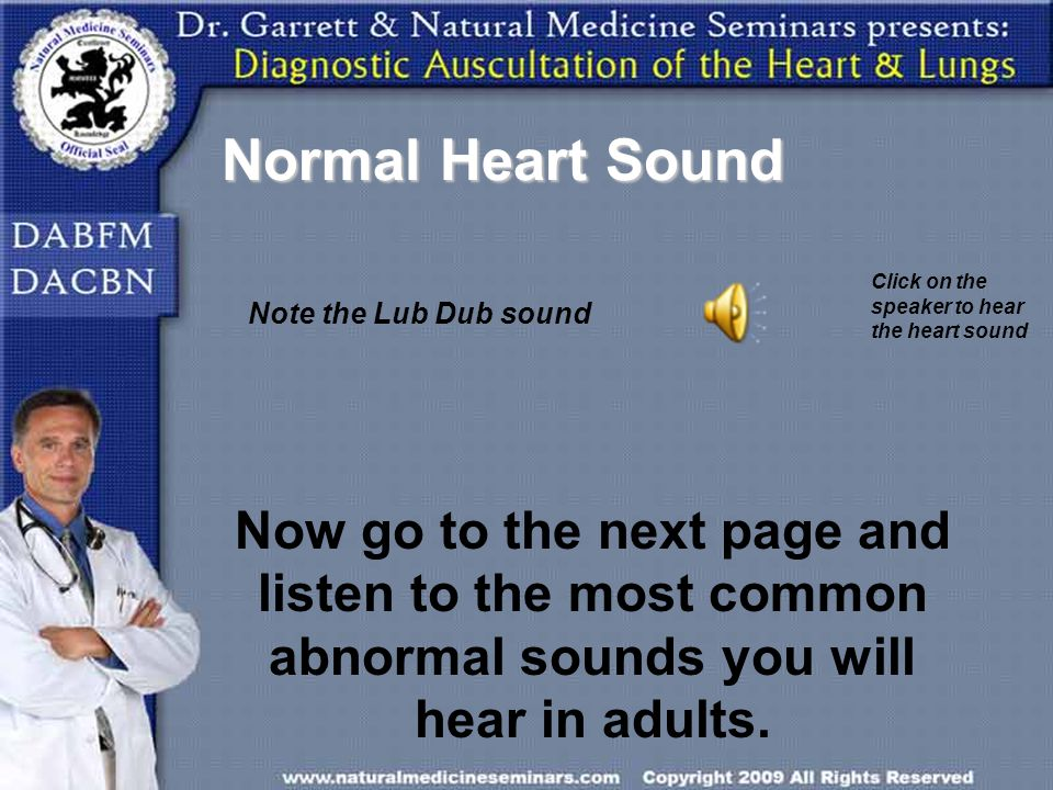 Normal Heart Sound Click on the speaker to hear the heart sound Note the Lub Dub sound Now go to the next page and listen to the most common abnormal