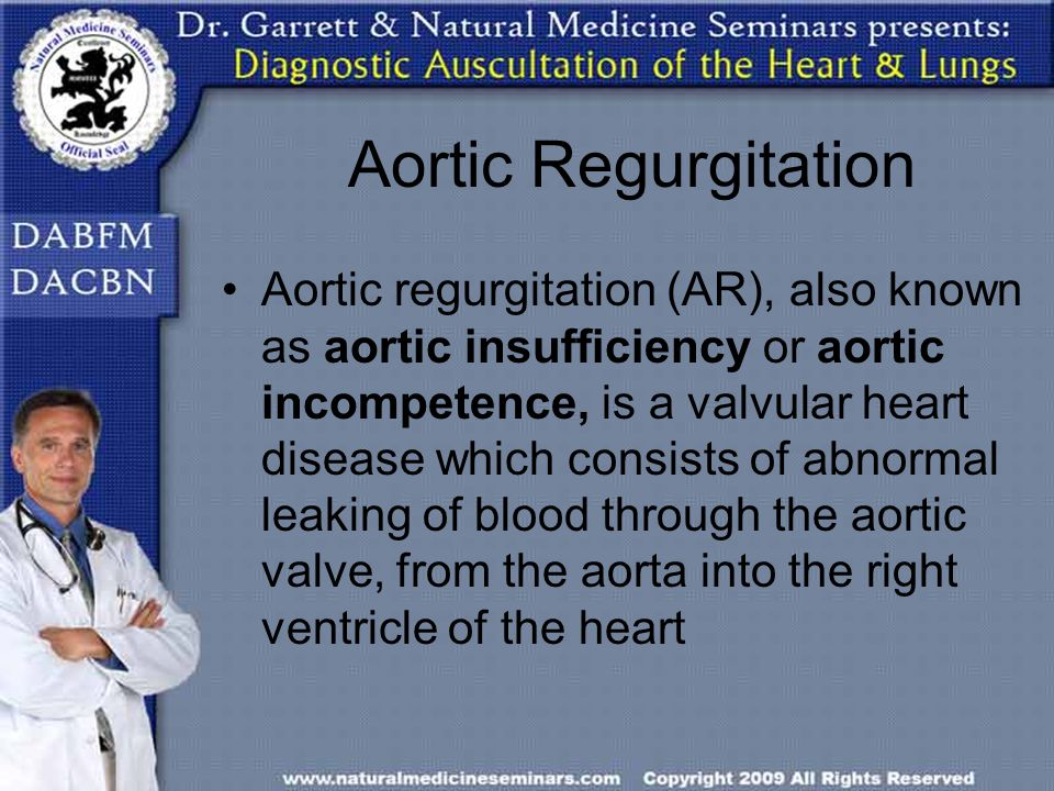 Aortic Regurgitation Aortic regurgitation (AR), also known as aortic insufficiency or aortic incompetence, is a valvular heart disease which consists