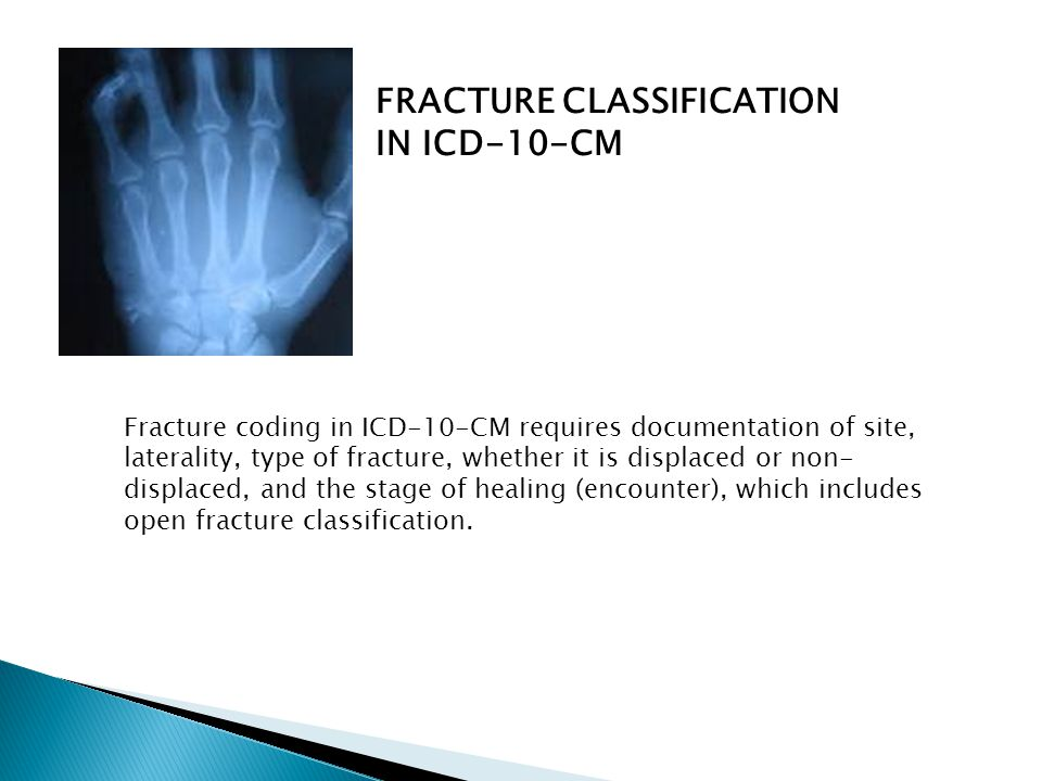FRACTURE CLASSIFICATION IN ICD-10-CM Fracture coding in ICD-10-CM requires documentation of site, laterality, type of fracture, whether it is displace