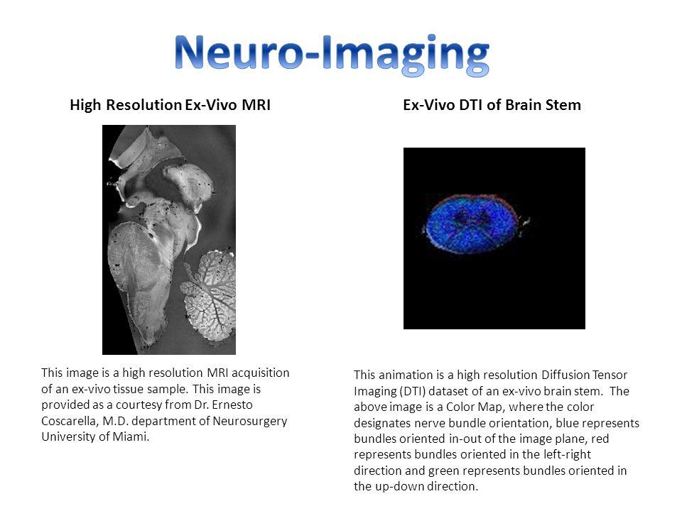 High Resolution Ex-Vivo MRIEx-Vivo DTI of Brain Stem This image is a high resolution MRI acquisition of an ex-vivo tissue sample.