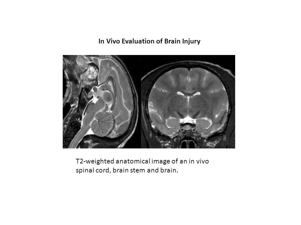 In Vivo Evaluation of Brain Injury T2-weighted anatomical image of an in vivo spinal cord, brain stem and brain.