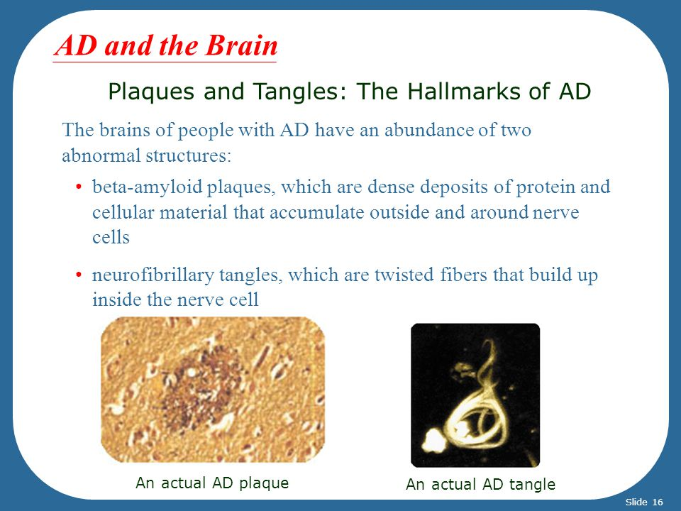 Plaques and Tangles: The Hallmarks of AD The brains of people with AD have an abundance of two abnormal structures: An actual AD plaque An actual AD tangle beta-amyloid plaques, which are dense deposits of protein and cellular material that accumulate outside and around nerve cells neurofibrillary tangles, which are twisted fibers that build up inside the nerve cell AD and the Brain Slide 16