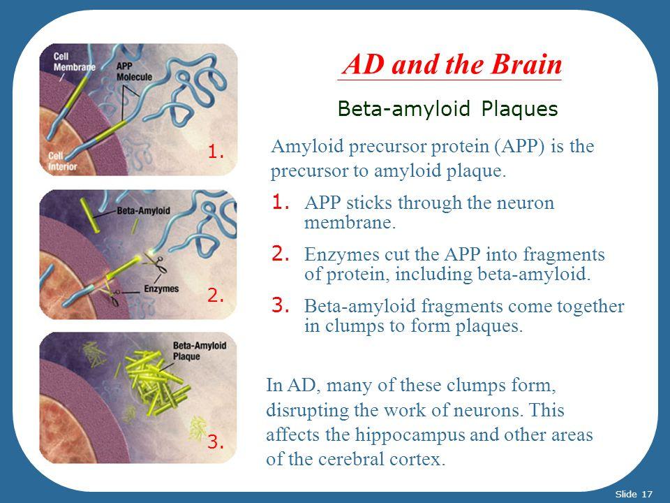 Beta-amyloid Plaques Amyloid precursor protein (APP) is the precursor to amyloid plaque. 1. APP sticks through the neuron membrane. 2. Enzymes cut the