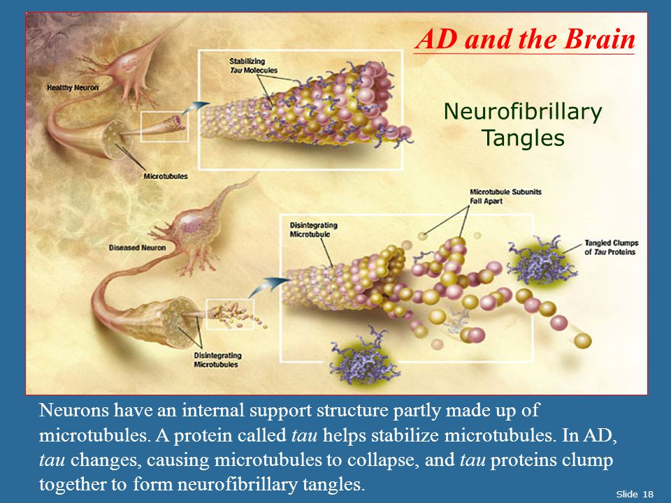 Neurofibrillary Tangles Neurons have an internal support structure partly made up of microtubules.