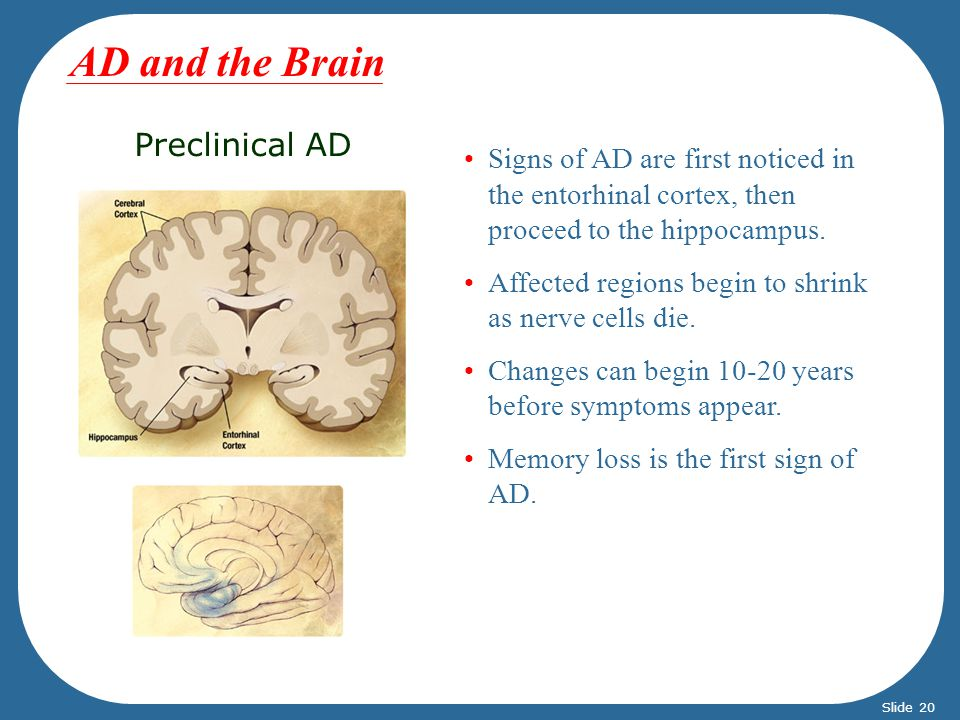 Preclinical AD Signs of AD are first noticed in the entorhinal cortex, then proceed to the hippocampus. Affected regions begin to shrink as nerve cell