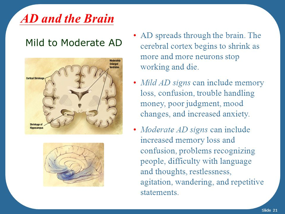 Mild to Moderate AD AD spreads through the brain.