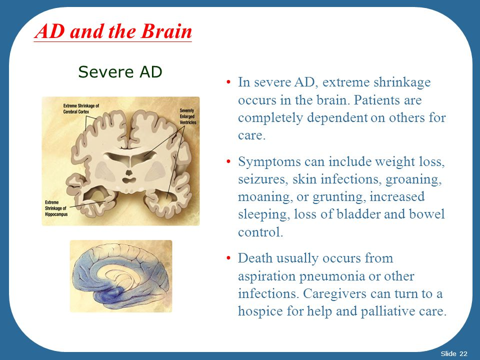 Severe AD In severe AD, extreme shrinkage occurs in the brain. Patients are completely dependent on others for care. Symptoms can include weight loss,