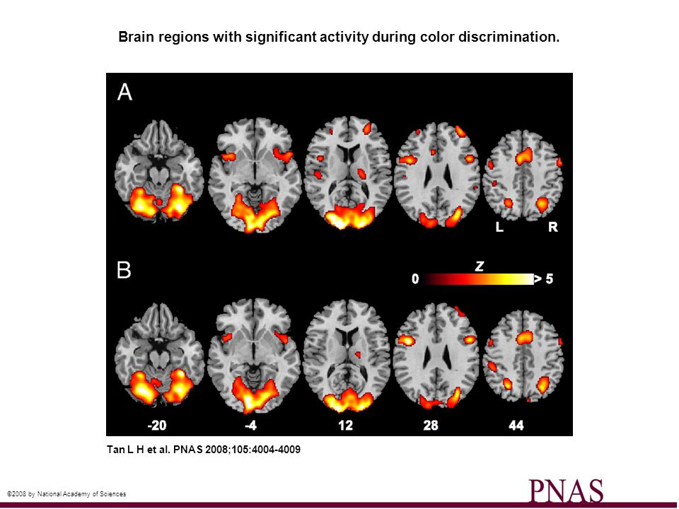 Brain regions with significant activity during color discrimination. Tan L H et al. PNAS 2008;105:4004-4009 ©2008 by National Academy of Sciences
