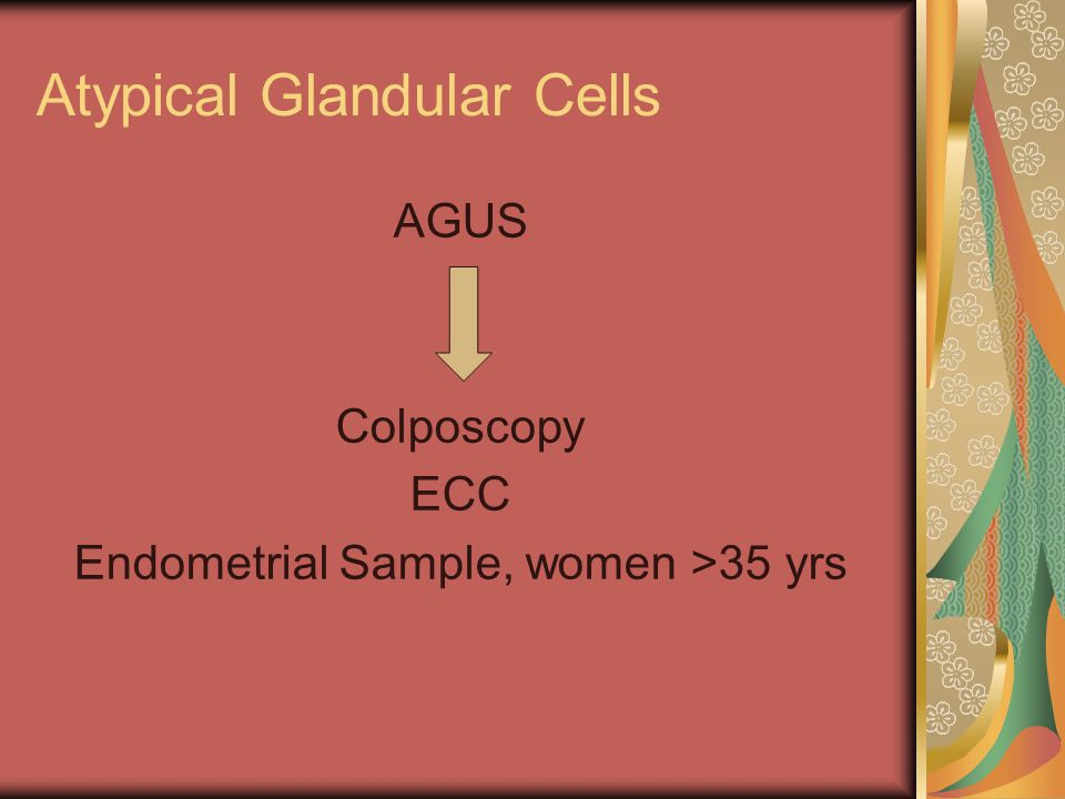Atypical Glandular Cells AGUS Colposcopy ECC Endometrial Sample, women >35 yrs