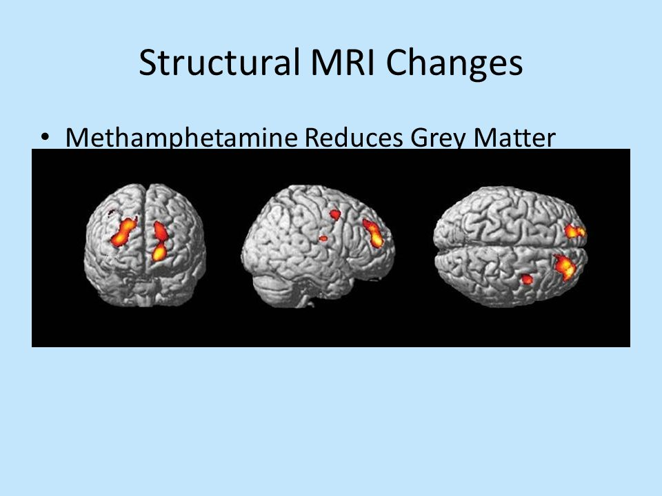 Structural MRI Changes Methamphetamine Reduces Grey Matter
