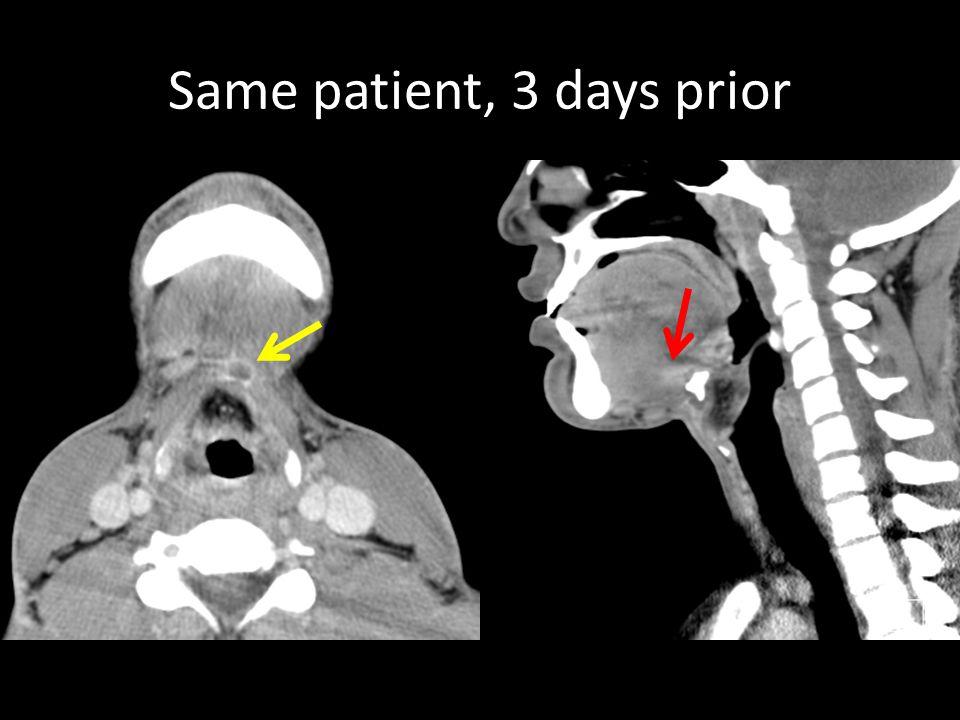 Same patient, 3 days prior