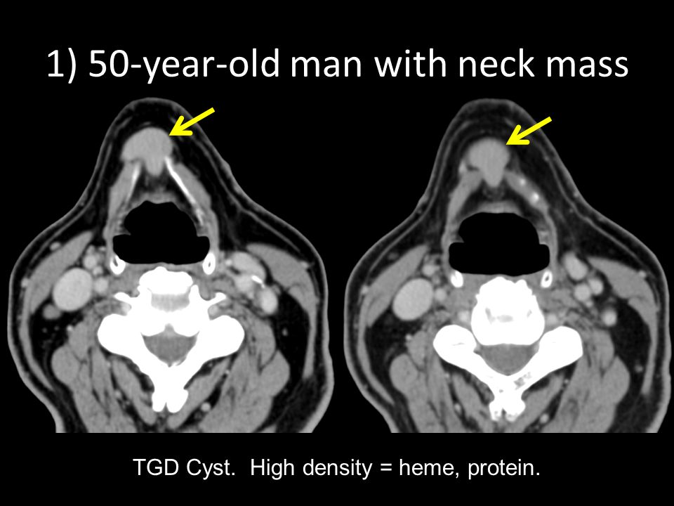 1) 50-year-old man with neck mass TGD Cyst. High density = heme, protein.