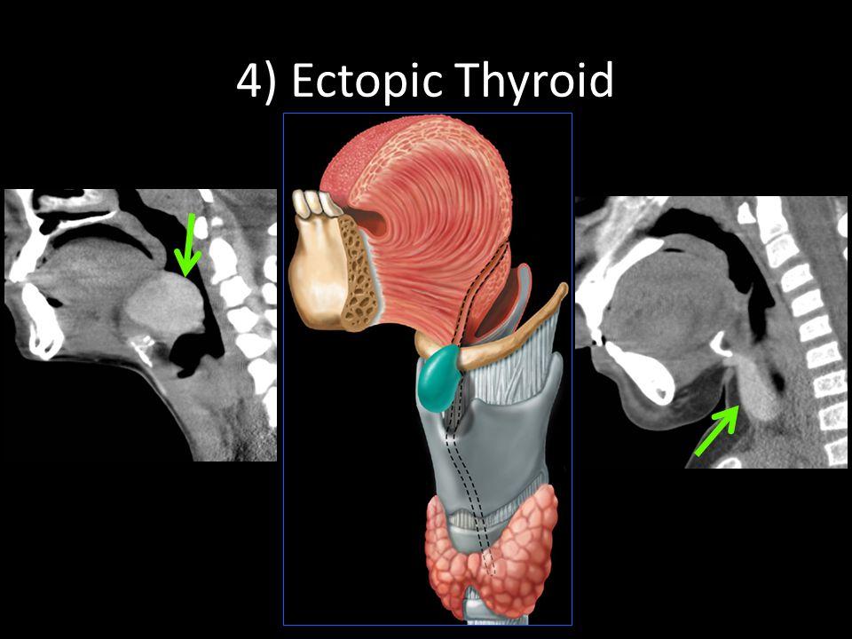 4) Ectopic Thyroid