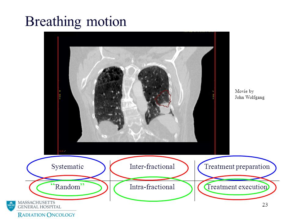 23 Breathing motion SystematicInter-fractionalTreatment preparation RandomIntra-fractionalTreatment execution Movie by John Wolfgang