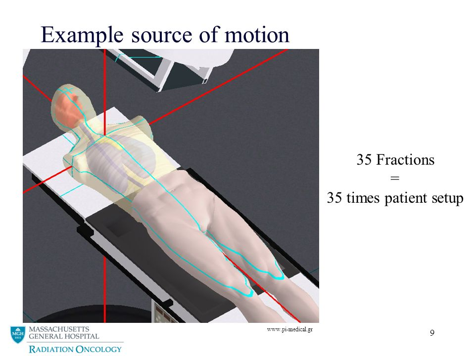 9 Example source of motion www.pi-medical.gr 35 Fractions = 35 times patient setup