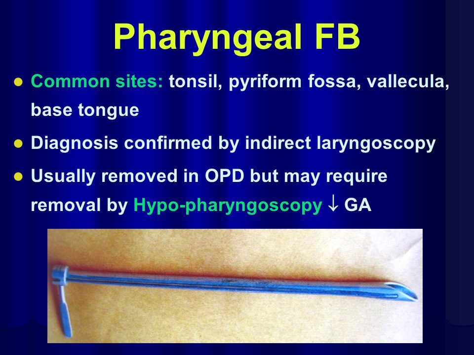 Pharyngeal FB Common sites: tonsil, pyriform fossa, vallecula, base tongue Diagnosis confirmed by indirect laryngoscopy Usually removed in OPD but may