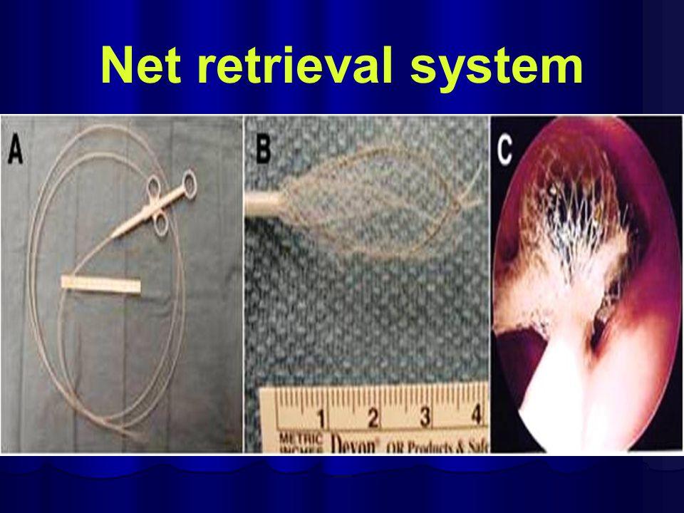 Net retrieval system