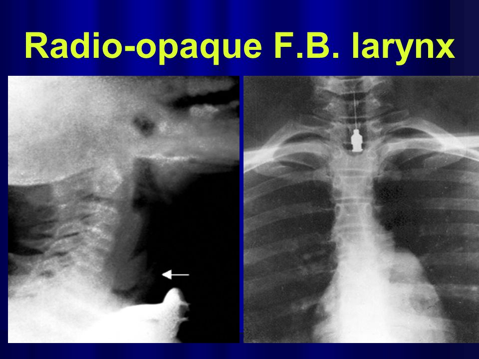 Radio-opaque F.B. larynx