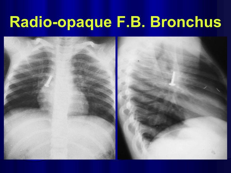 Radio-opaque F.B. Bronchus