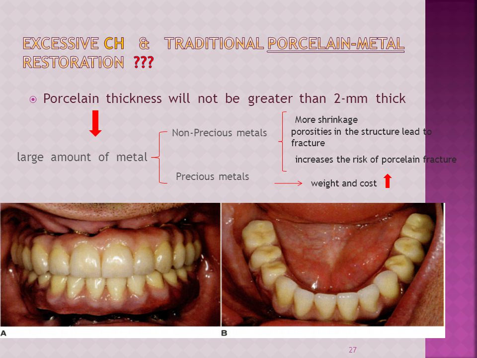 Porcelain thickness will not be greater than 2-mm thick 27 large amount of metal Precious metals Non-Precious metals More shrinkage porosities in the