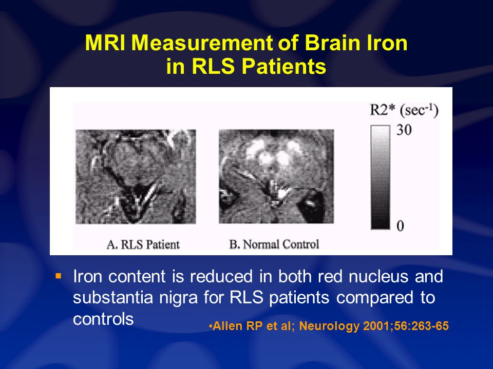 MRI Measurement of Brain Iron in RLS Patients Iron content is reduced in both red nucleus and substantia nigra for RLS patients compared to controls A
