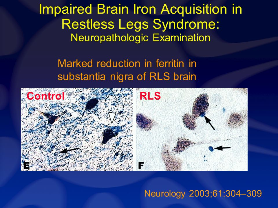 Neurology 2003;61:304–309 Impaired Brain Iron Acquisition in Restless Legs Syndrome: Neuropathologic Examination ControlRLS Marked reduction in ferrit