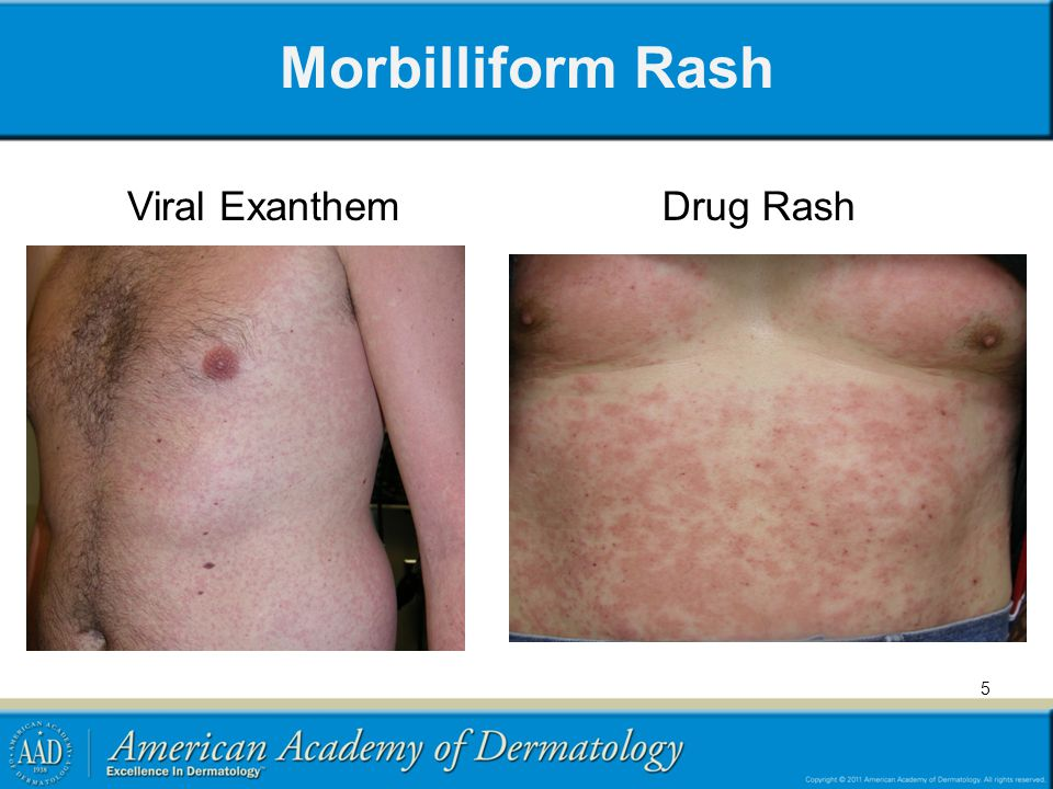 Morbilliform Rash Viral ExanthemDrug Rash 5