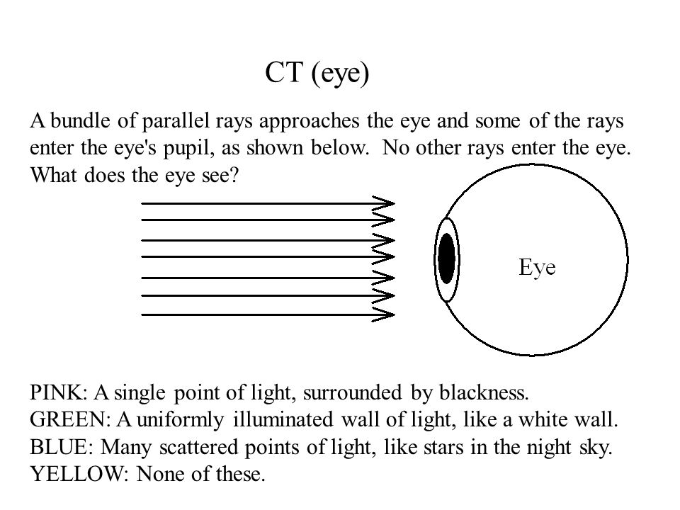 CT (eye) A bundle of parallel rays approaches the eye and some of the rays enter the eye s pupil, as shown below.