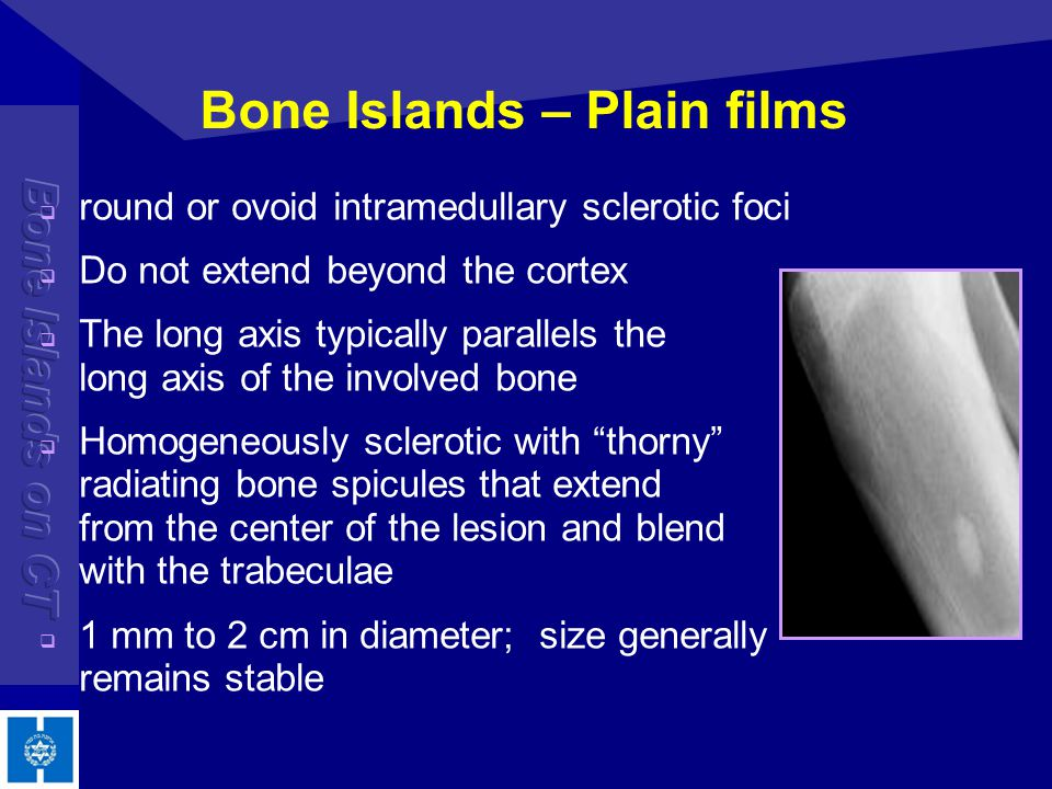 Bone Islands – Plain films round or ovoid intramedullary sclerotic foci Do not extend beyond the cortex The long axis typically parallels the long axi